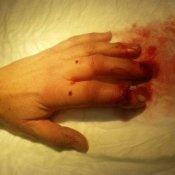 severed-finger-a